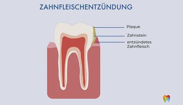 Eine Zahnfleischentzündung wird durch Plaque hervorgerufen (Foto: CASA DENTALIS)